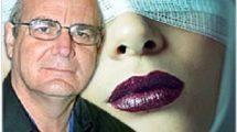 תימניות, זהירות: ניתוח של הרמת עפעפיים, מתיחת פנים ופילינג בלייזר, עלול להיכשל | דר' אלכס לבנברג