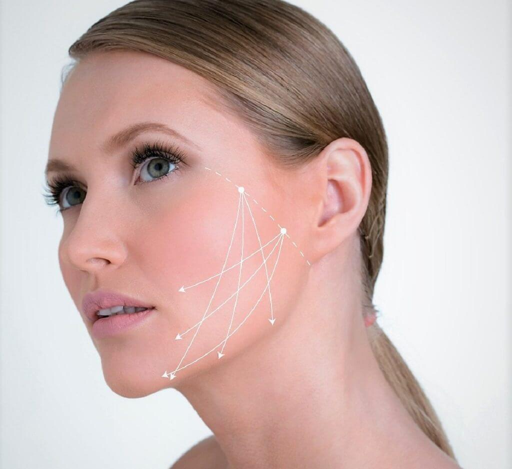 חברת פרומדיק: יצירת גומות חן באמצעות חוטי אפטוס | צילום: פרומדיקס | עיבוד צילום: שולי סונגו©