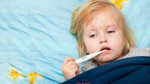 מחלת החצבת מתפרצת באירופה: התחסנו לפני שתטוסו בצילום: ילדה שנדבקה במחלת חצבת | הדמייה | עיבוד צילום: שולי סונגו©