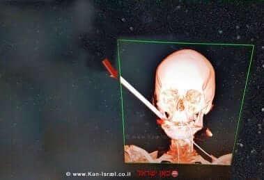 צילום הסי-טי של הצעיר נתנאל מאזור חיפה כשהחץ נעוץ בפניו   צילום: אלי דדון