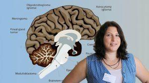 דוקטורנטית סיון גרשנוב, אוני' אריאל' | רקע: Medulloblastoma