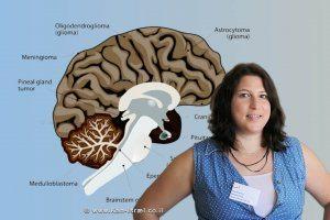 דוקטורנטית סיון גרשנוב, אוני' אריאל'   רקע: Medulloblastoma
