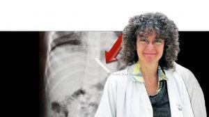 דר' אורלי אישך-אדיב מנהלת השירות לגסטרואנטרולוגיה ותזונה בילדים של המרכז הרפואי הלל יפהברקעהמגנטים כפי שנצפו בבטן הפעוטה