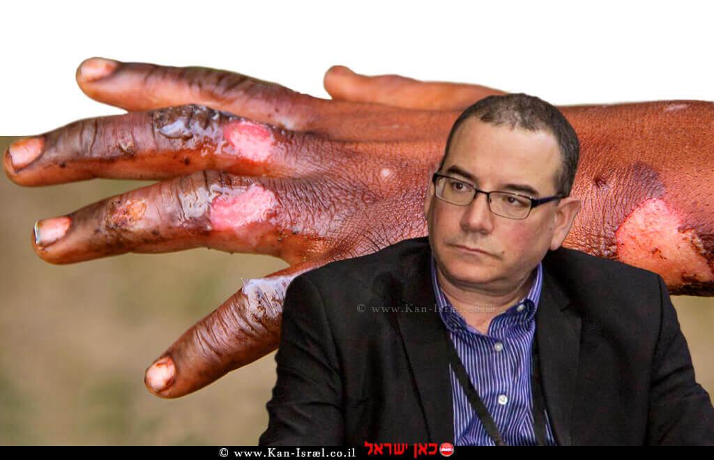 דר' ירון שהם 'האיגוד הישראלי לכירורגיה פלסטית ואסתטית' | רקע: כוויה | צילום: נמרוד ארונוב | עיבוד: שולי סונגו