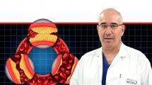 דר' איתן הלדנברג מנהל מחלקה לכירורגית כלי דם במרכז הרפואי הלל יפה | ברקע תרשים תסמיני מחלות עורקים | עיבוד ממחושב: שולי סונגו©