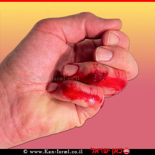 חתך עמוק באצבע | עיבוד צילום: שולי סונגו ©