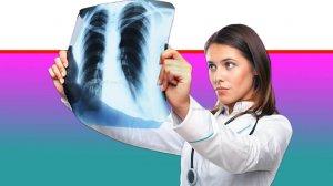רופאה בודקת צילום רנטגן של סרטן ריאות | עיבוד צילום: שולי סונגו ©