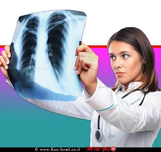 רופאה בודקת צילום רנטגן של סרטן ריאות   עיבוד צילום: שולי סונגו ©