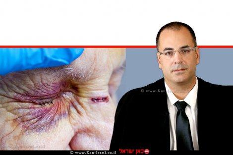 כב' השופט בני שגיא מבית המשפט המחוזי תל אביב ברקע: ברקע:עין פצועה של קשישה ואצבעות אחות המטפלת, אילוסטרציה | עיבוד צילום: שולי סונגו ©