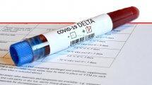 מבחנה דם לזיהוי בדיקה של נגיף Covid-19 Delta Variant עם תוצאה חיובית |עיבוד צילום: שולי סונגו ©